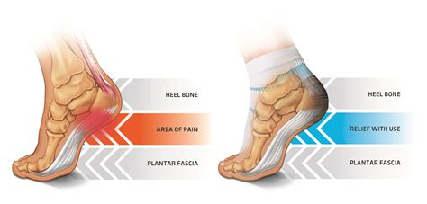 How A Tennis Ball Will Get You Rid Of Plantar Fasciitis In