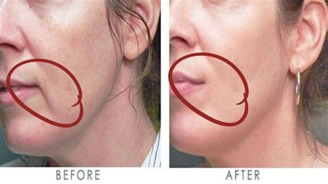 How to get rid of wrinkles above your lips in just few