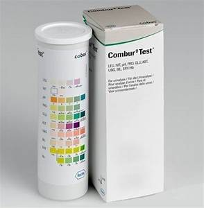 Ph Wert Test : teststreifen combur 9 test urintest urine test streifen ph wert schwangerschaft ebay ~ Eleganceandgraceweddings.com Haus und Dekorationen