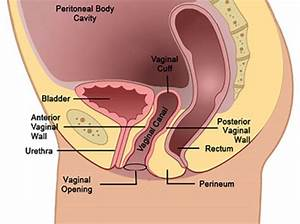Nerve Damage To The Vaginal Cuff After Total Hysterectomy