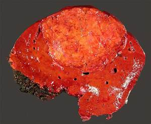 Liver Partial Resection