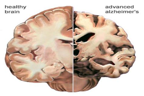 researchers scan healthy brains  alzheimers