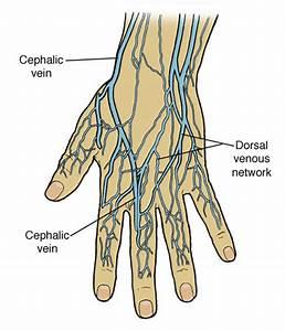damaged valves in leg veins
