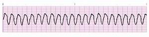 Dr. Smith's ECG Blog: Polymorphic Ventricular Tachycardia