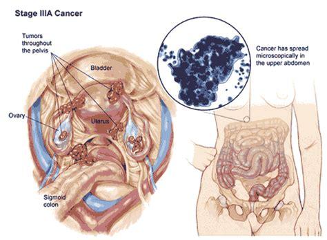 Makanan Untuk Wanita Datang Bulan Tanda Tanda Gejala Penyakit Kanker Ovarium Serambi Kesehatan