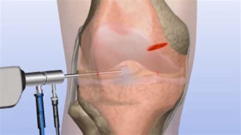 Plica Knee Injury
