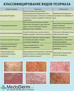 Институт лечения псориаза сокольники