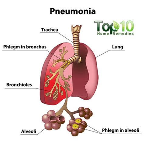 Home Remedies For Pneumonia  Top 10 Home Remedies. Maryland Payroll Calculator Casa De Perfumes. Data Leak Prevention Software. Medications For Bronchitis Kia Columbus Ohio. New York State Corporations Nyc Lsat Tutor. Give You A Break Bail Bond Georgetown Tx. Promise Christian University. Home Telephone Service Providers. Caribbean Medical School Loans