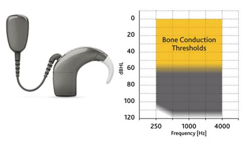 cochlear americas baha order form new treatment options for patients with ssd and mixed