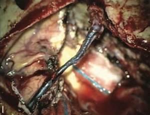 "Posts tagged ""parasagittal-meningioma"" - Neurosurgery Blog"