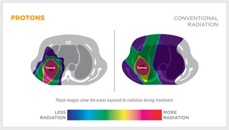 What Is Proton Therapy For Cancer by Proton Therapy For Lung Cancer Provision Proton Therapy