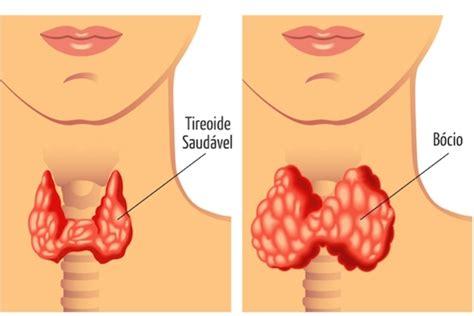 bocio     quais os sintomas tua saude