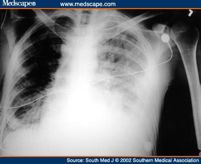Orleans Effusion L by Thoracoscopic Management Of Pleural Effusions In Kaposi S