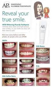 AP24 Toothpaste Teeth Whitening