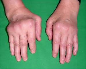 Image result for ra hands