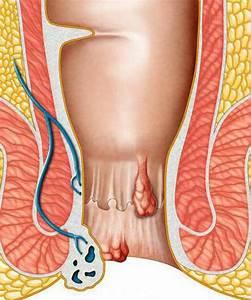 Геморрой и трещины заднего прохода хирургия