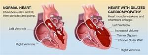 Cardiomyopathy, Dilated; Cardiomyopathy, Congestive ...