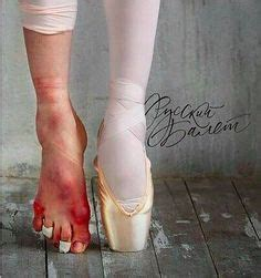ballerina feet picture  damage  ballet