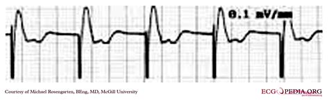 pacemaker chambre the ekg in a patient with a pacemaker wikidoc