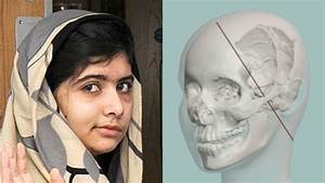 How doctors will repair Malala Yousafzai's skull – Channel ...
