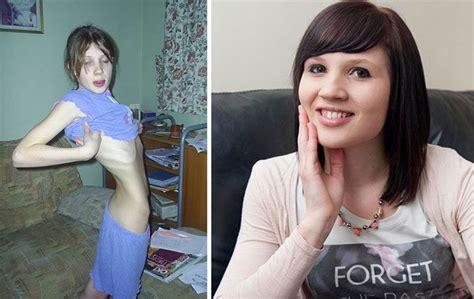 anoressia prima  dopo  immagini  persone anoressiche