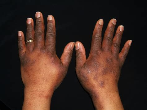 Eczema Symptoms & Causes | National Eczema Association