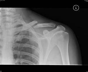 Collarbone surgery. Bones displacing after surgery ...