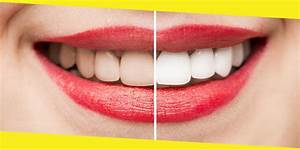 Dummies Guide To Teeth Whitening Products In Australia
