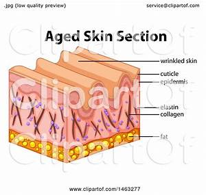 Clipart Of A Medical Diagram Of Aged Skin