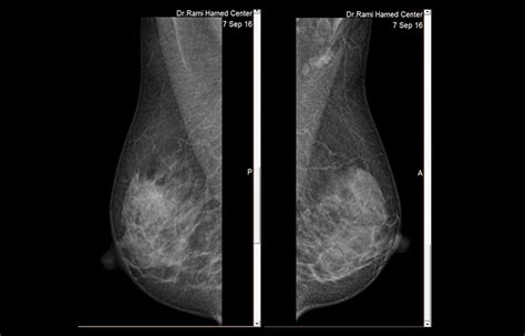 Breast Radiology Centermammography Breast Mri