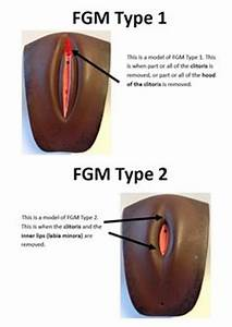 Genital Mutations In Before And After Pictures to Pin on ...