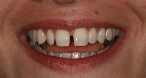 There appears to be a multitude of posts on /r/personalfinance about how individuals had unexpected bills because of a problem with their this post will cover the basics of health insurance, as is relevant for most consumers. Veneers in Countryside, IL - Hope Dental