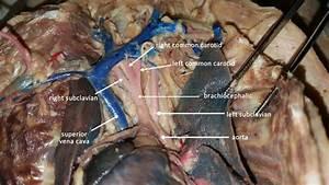 Brachiocephalic Artery In Cats
