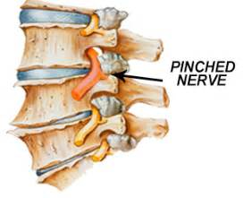 Gulf coast Injury Center - Pinched Nerves Cervical Stenosis