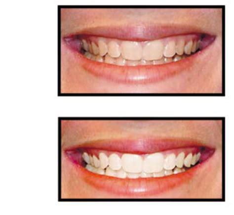 simply white smile rosem 232 re qc ourbis