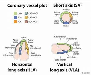 Coronary Arteries Diagram