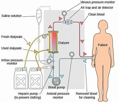 Hemodialysis Svg Pixels Dialysis Hemo Wikimedia Commons