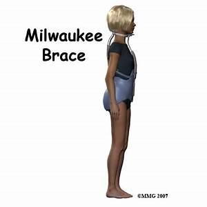 hump back, scoliosis, spine problem in children, hump ...