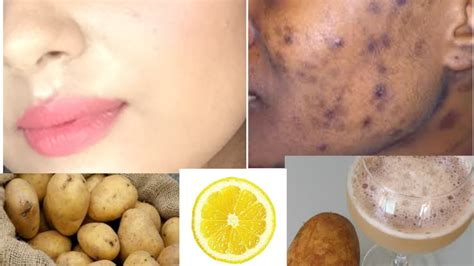 how to remove black spots spots acne scars on only in 5 days tanutalks