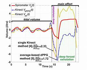 The Single Kinect And Dppg Volume U2013time Data And Their