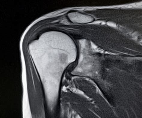 MRI Options for Imaging Rotator Cuff Damage | GE Healthcare