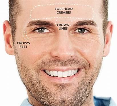 Botox Brotox Lip Male Injections Welcome Club