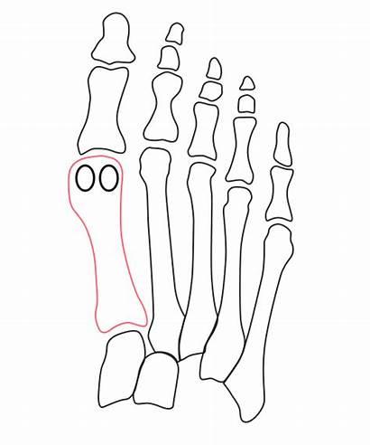 Bunion Inside Foot Surgery Going Greek