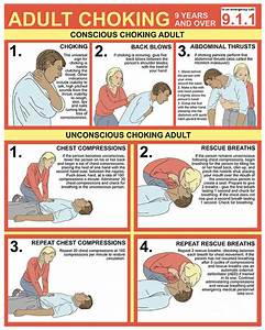 Choking First Aid Chart Art Print By Gwen Shockey