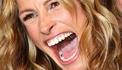 healthcardfreeshould  dentist  silver amalgam fillings