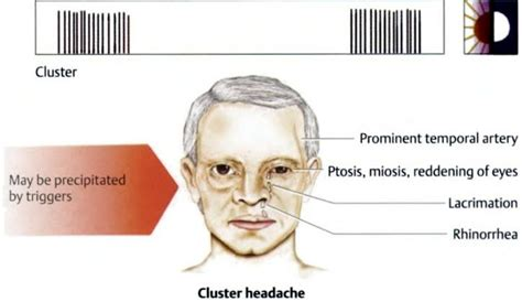 What Are Cluster Headaches?  Health Life Media. Dish Network Lifetime Channel. Human Resource Information Systems. Photo Books Online Apple Elite Salon Software. Citizens Life Insurance Divorce Attorney Reno. Public Health Education Programs. Business Logo Tote Bags College Foundation Nc. Plastic Surgeons Washington Dc. Problem Communicating With Dish 775