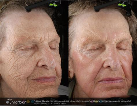 dot laser skin resurfacing