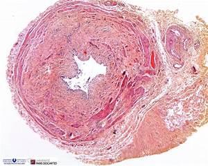 Ureteropelvic Junction Obstruction - Humpath Com