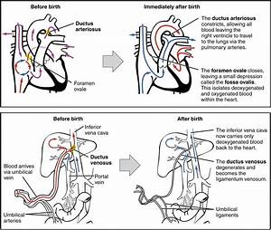 Fetal Circulation Changes At Birth