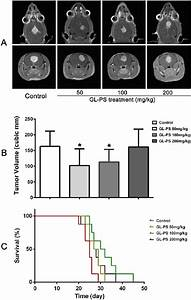 The Tumor Size And Survival Curve In The Glioma